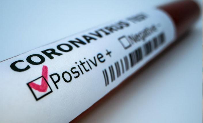 Ekor'da 3 personel pozitif