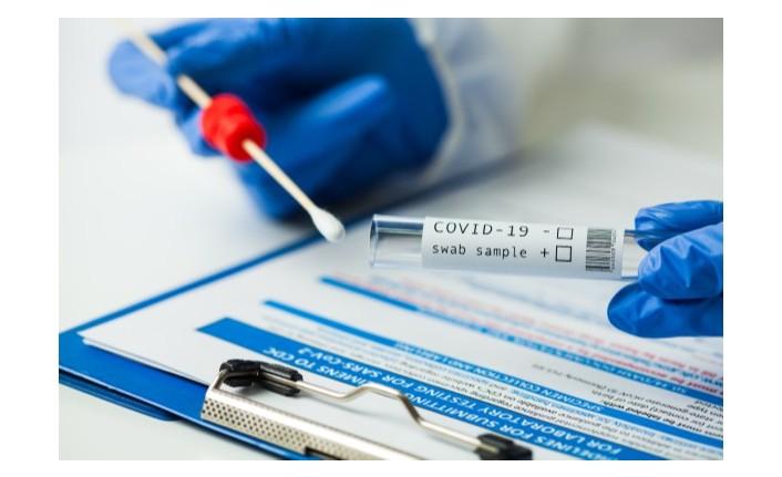 TRNC records 25 COVID cases