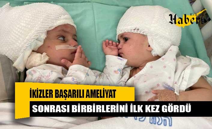 ikizler başarılı ameliyat sonrası birbirlerini ilk kez gördü
