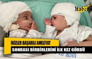 ikizler başarılı ameliyat sonrası birbirlerini...