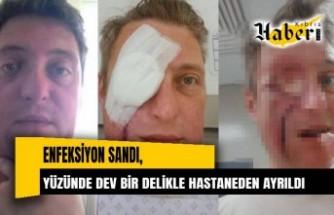 Enfeksiyon sandı, yüzünde dev bir delikle hastaneden ayrıldı!